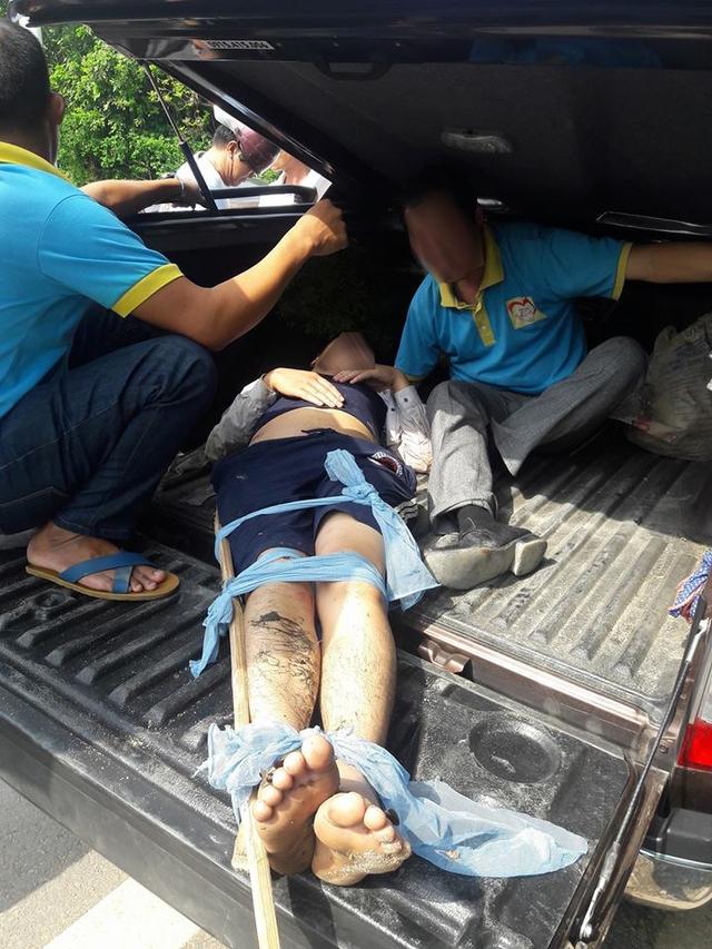 Nam thanh niên điều khiển Exciter 150 bị gãy xương đùi.