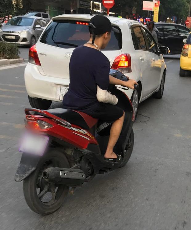 Xôn xao hình ảnh nam thanh niên bị gãy tay phải, vẫn liều mình vặn ga xe máy bằng... tay trái - Ảnh 1.