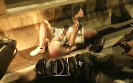 Hà Nội: Cô gái trẻ bị gãy gập chân vẫn bình tĩnh nằm bấm điện thoại sau va chạm giao thông